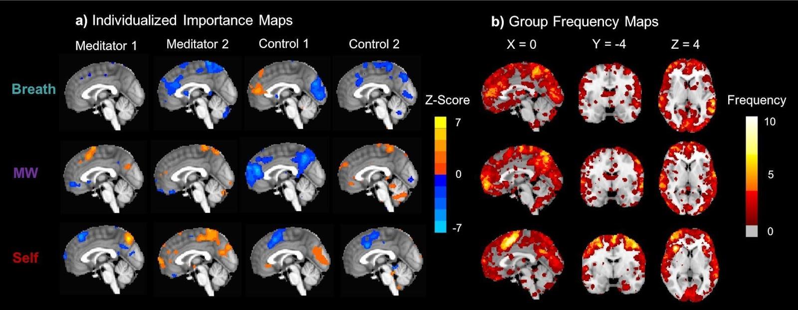 нейрофизиология медитации